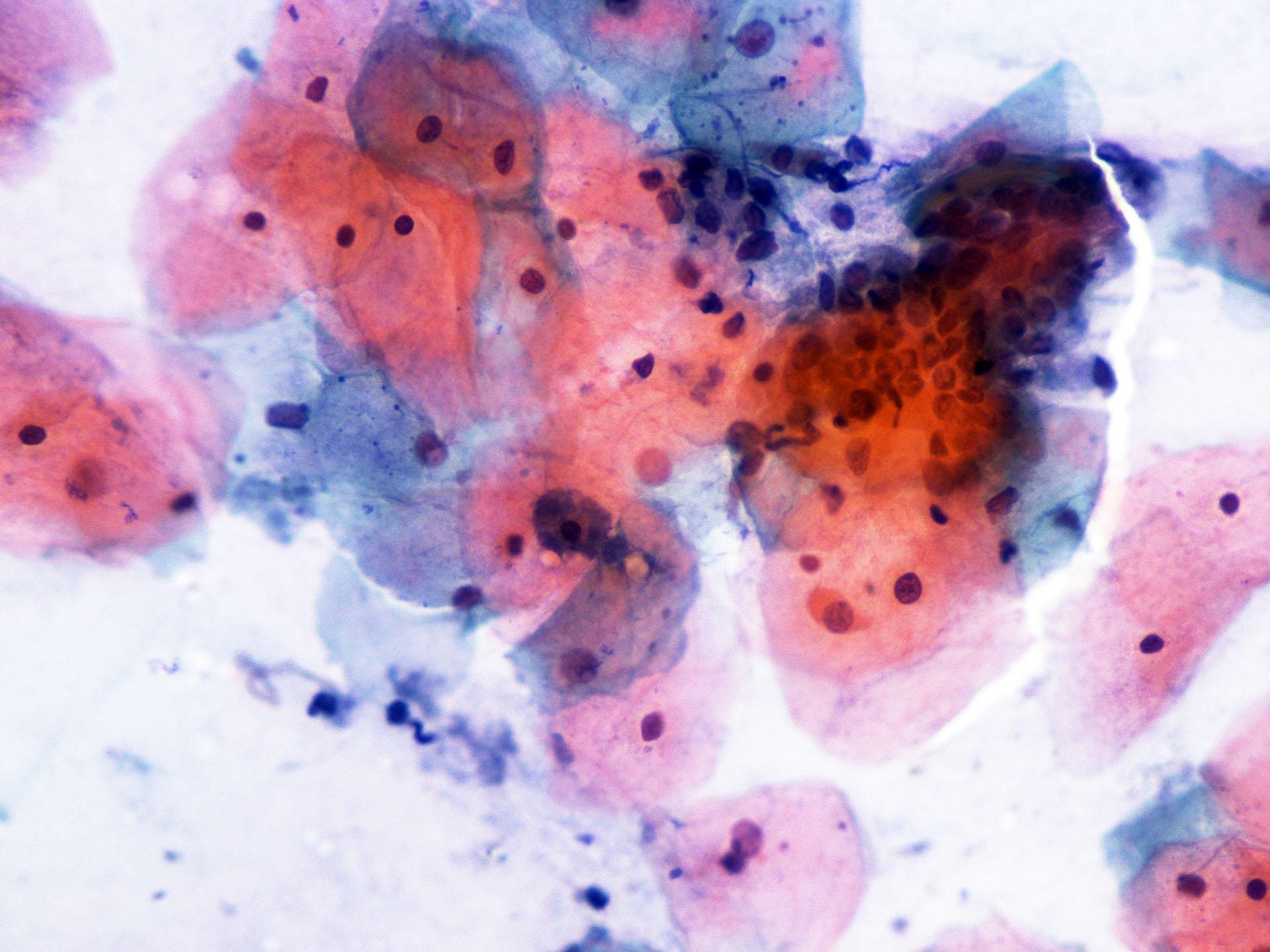Κύτταρα κάτω από συμβατικό μικροσκόπιο