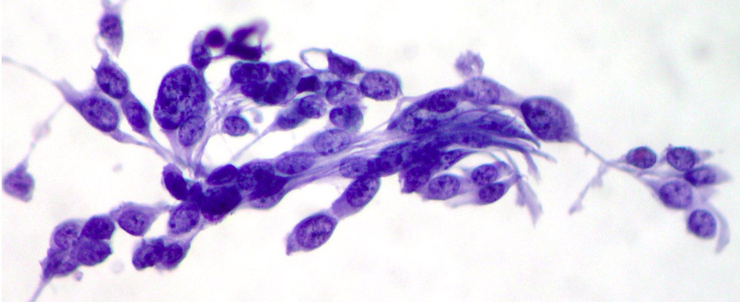 Κυτταρολογική εξέταση ούρων